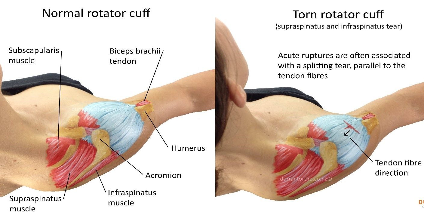 ROTATOR CUFF INJURIES – Health Serve
